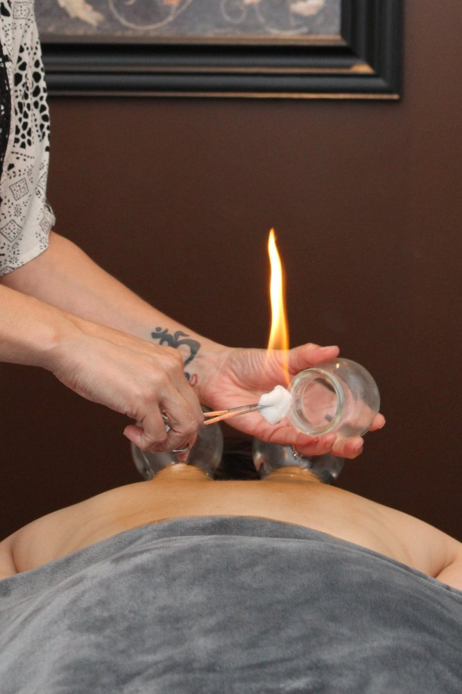 cupping-services